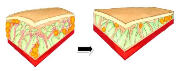 Fett und Lipödem